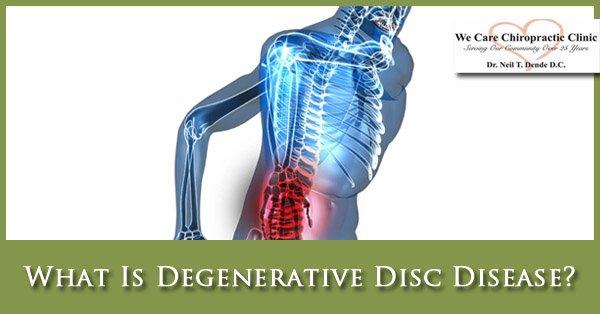 What Is Degenerative Disc Disease?